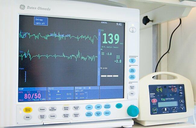 sveikatos širdies ritmas didelis galvos svaigimas su hipertenzija kas