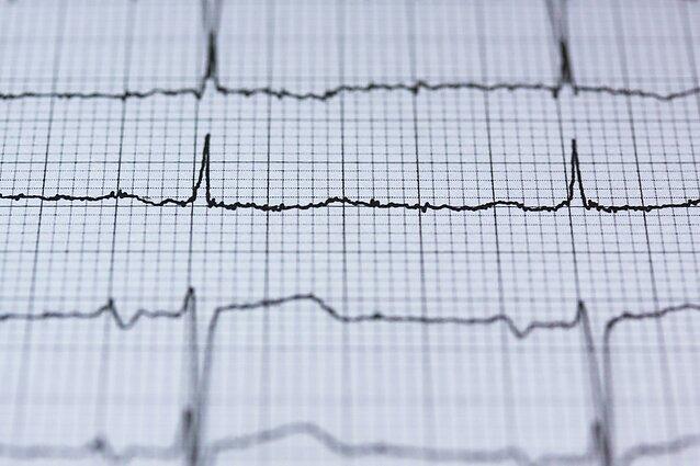 omega trys ir širdies sveikata