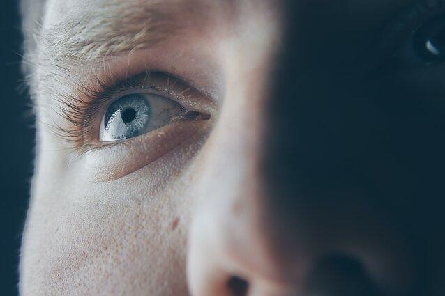 akies hipertenzija yra
