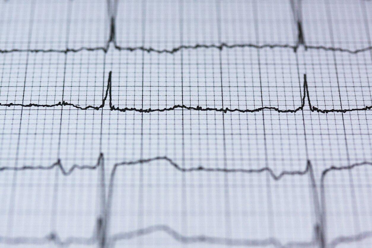 sveikatos širdies programos dažnis