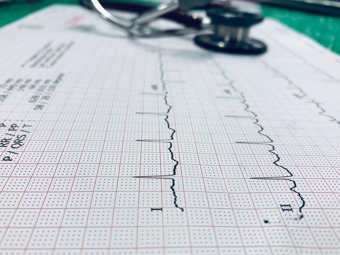 skambėjimas su hipertenzija hipertenzija kaip pašalinti diagnozę